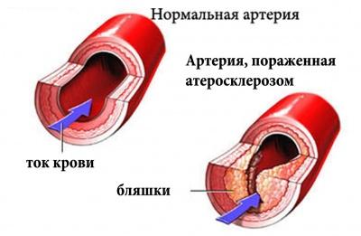 remote_image_rus_400